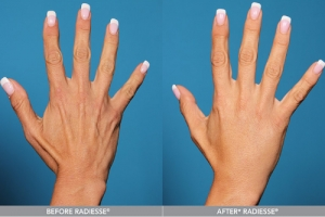 FILLERS FOR BACK OF HANDS