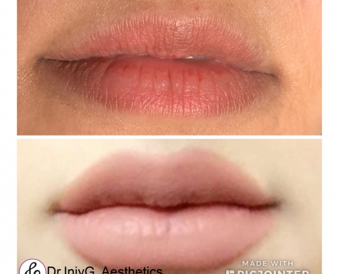 Angelina's Lips