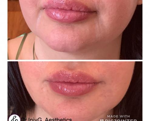 Botox - Lips