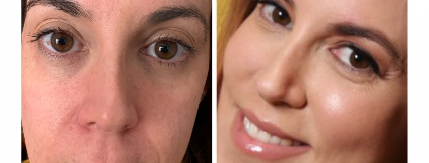 Complete fluid face lift and jawline definition