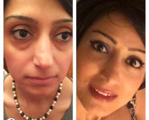 Complete non surgical facelift