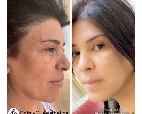 Fluid face lift and Mesotherapy