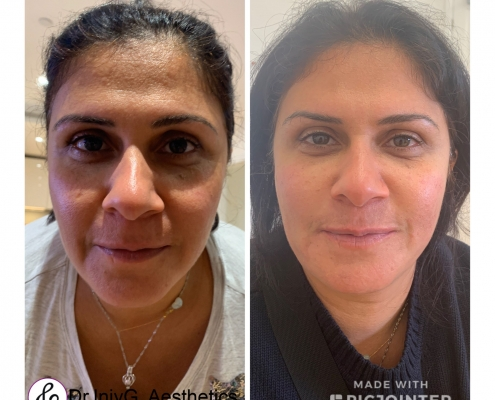 Fluid face lift