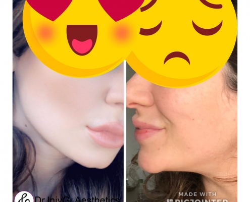 Jaw line definition and chin augmentation