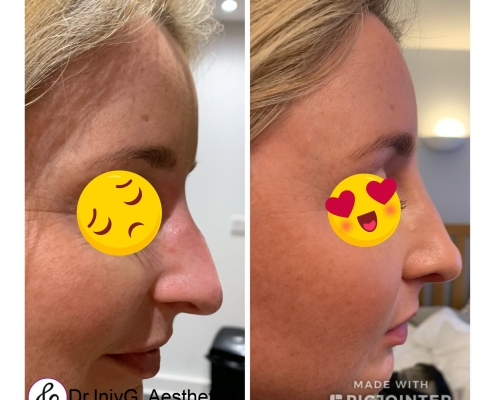 Non surgical rhinoplasty, fluid nose