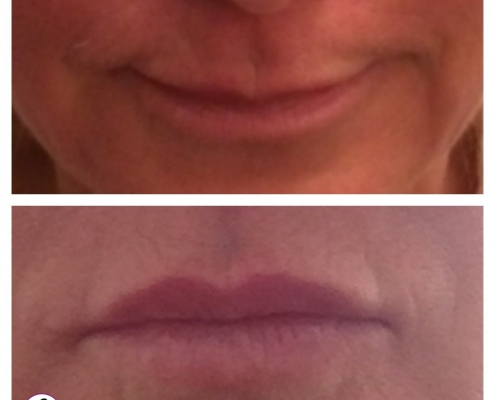 Subtle lip and chin rejuvenation